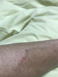 ガン闘病記 1年後