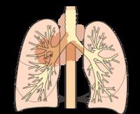 肺ガン闘病記