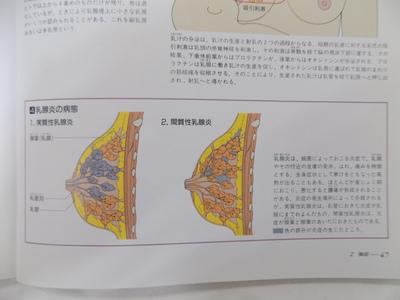 乳輪下膿瘍についての考察